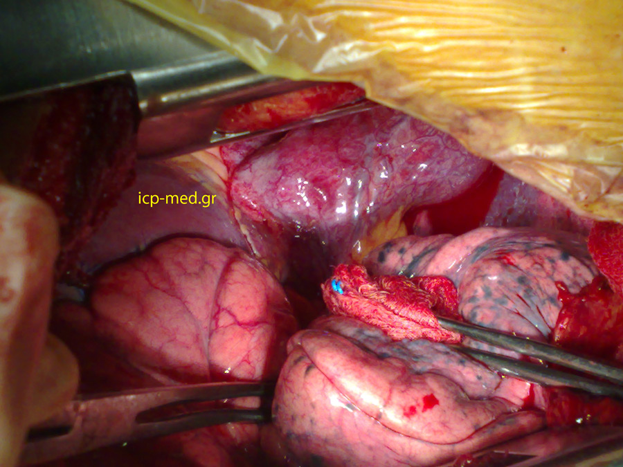 Intraoperative photograph of the case with Agenesis of pericardium: the myocardium comes into view after having retracted the left lung by a swap